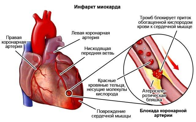 Инфаркт: что это такое, причины возникновения, первые признаки, диагностика и лечение. виды инфарктов