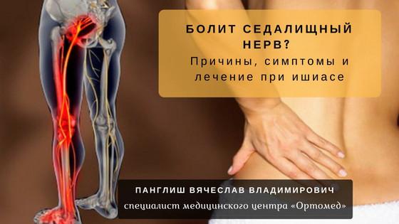 Как лечить седалищный нерв в домашних условиях: препараты, упражнения, настойки для втираний