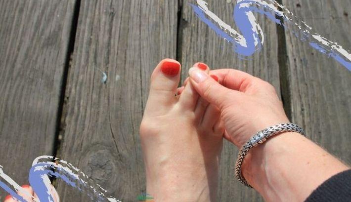 Болезни стопы. самые популярные заболевания стоп