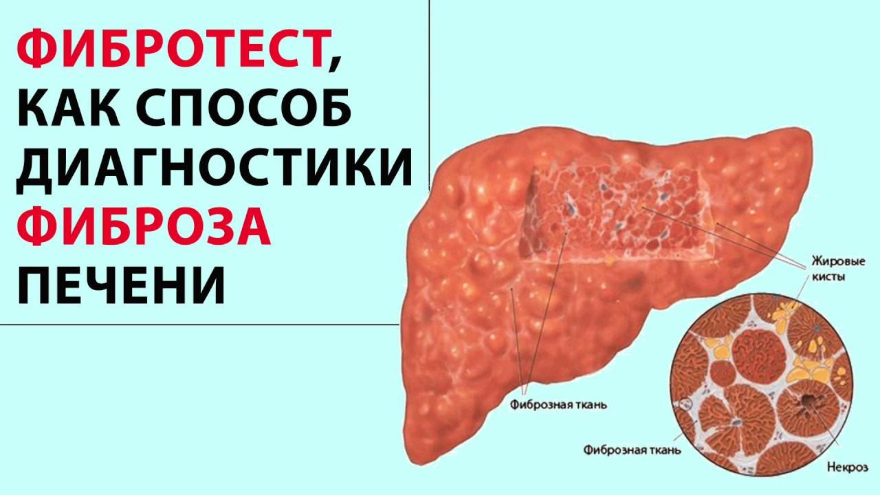Фиброз печени 1 степени: лечение и причины ???? | gepatit abc