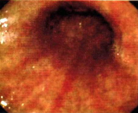 Что такое бульбит желудка, и как лечить