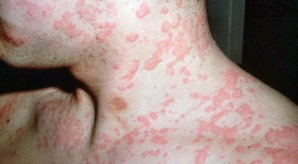 Тубулонтерстициальный нефрит у взрослых и детей: что это за болезнь, симптомы, диагностика и лечение, народные средства, последствия