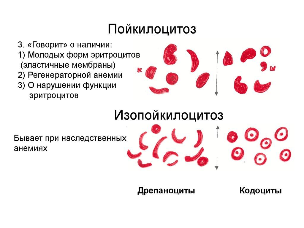 Анизоцитоз: понятие, нормы в анализе крови, виды, о чем говорит