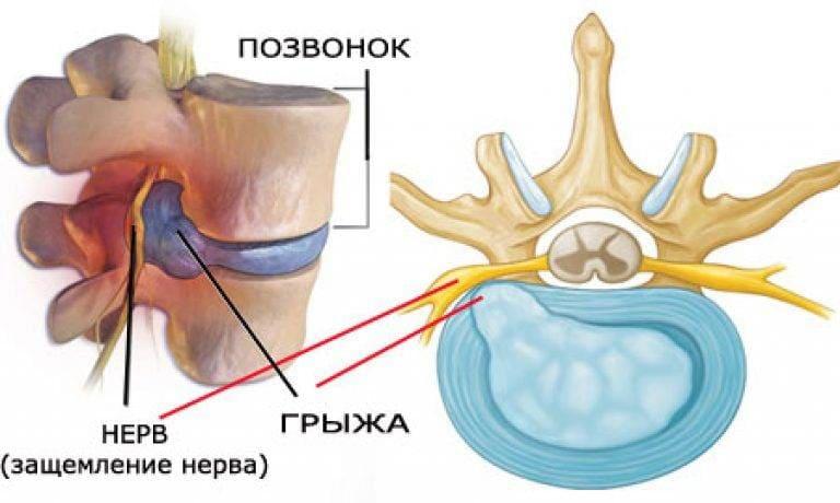Протрузия межпозвоночных дисков: причины, симптомы, лечение заболевания