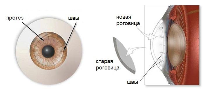 Роговица глаза: строение, функции, заболевания и лечение