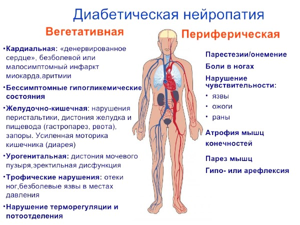 Диабетическая полинейропатия - поражение нервной системы : saxarvnorme