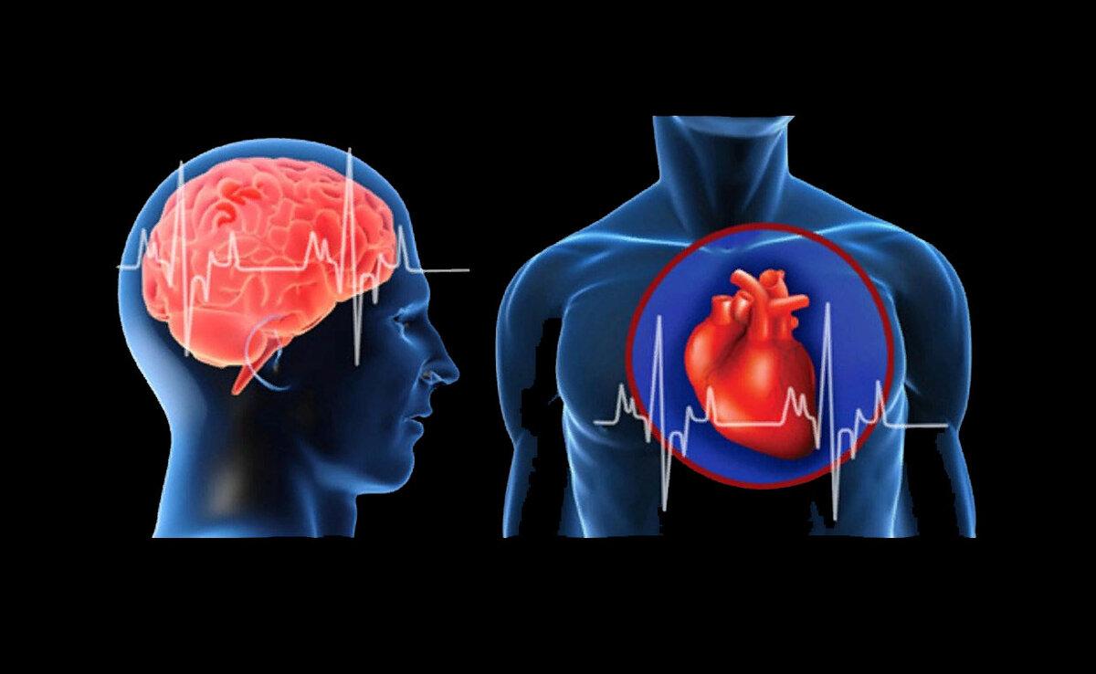 Инфаркт и инсульт, в чем разница, что общего, первая помощь