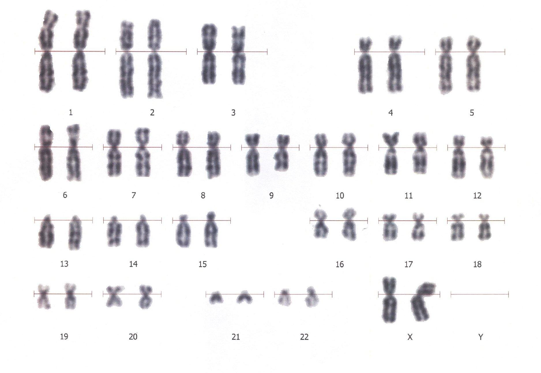Кариотип человека: что такое, определение кариотипа, хромосомы - сам себе доктор