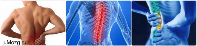 Синдром вертеброгенной люмбалгии: почему появляется боль в пояснице и как с ней бороться?