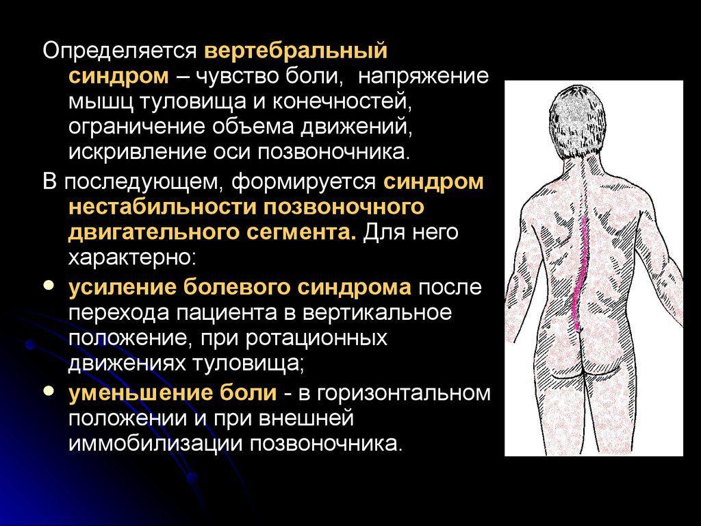 Цервикалгия - описание, причины, симптомы, диагностика и лечение