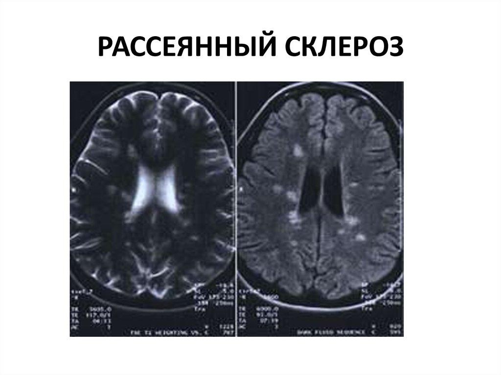 Рассеянный склероз: симптомы, лечение. сколько с ним живут