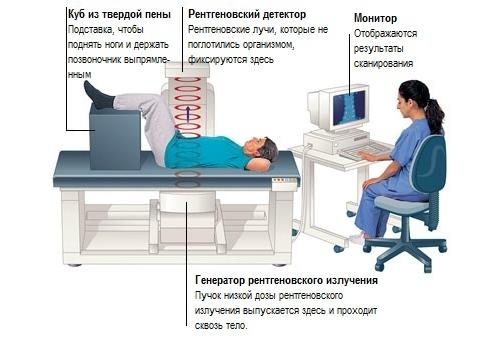 Кт-денситометрия
