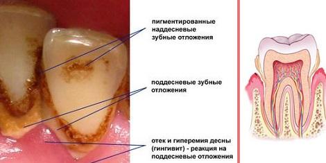 Почему образуется зубной камень, фото и причины появления