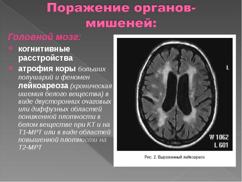 Лейкоареоз головного мозга: что это такое, виды, признаки, как лечить