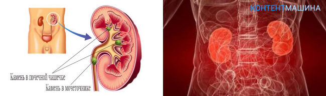 Микролиты в почках у женщин: что это такое, симптомы, лечение препаратами, народными средствами