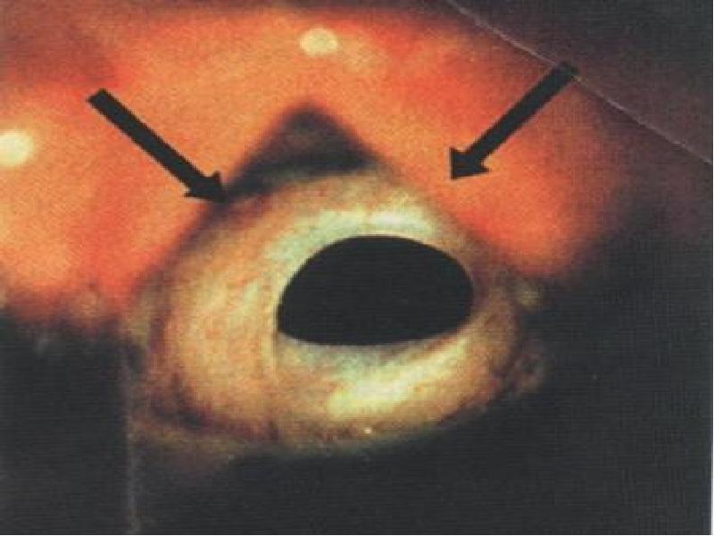 Что такое стеноз аортального клапана и как его лечить