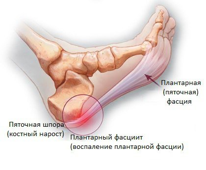 Лечение пяточной шпоры: методы, терапия, увт, чем лечить шпоры на пятках