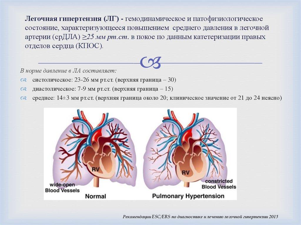 Легочное сердце. причины, симптомы, признаки, диагностика и лечение патологии