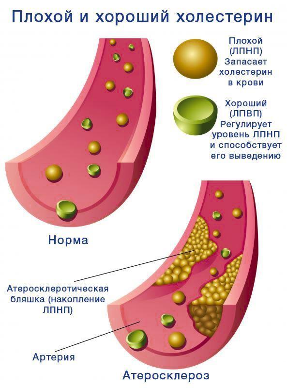 Липопротеины крови различной плотности: высокой и низкой и очень низкой