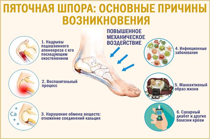Пяточная шпора: лечение, симптомы и диагностика