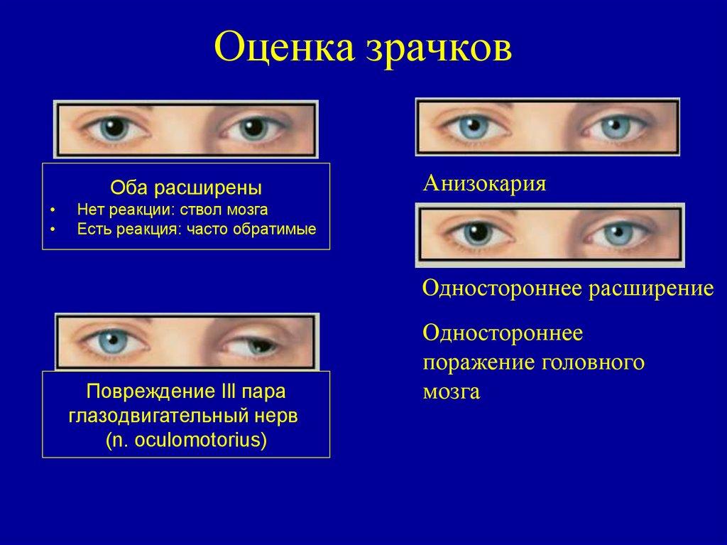 Что такое зрачок глаза - мед портал tvoiamedkarta.ru