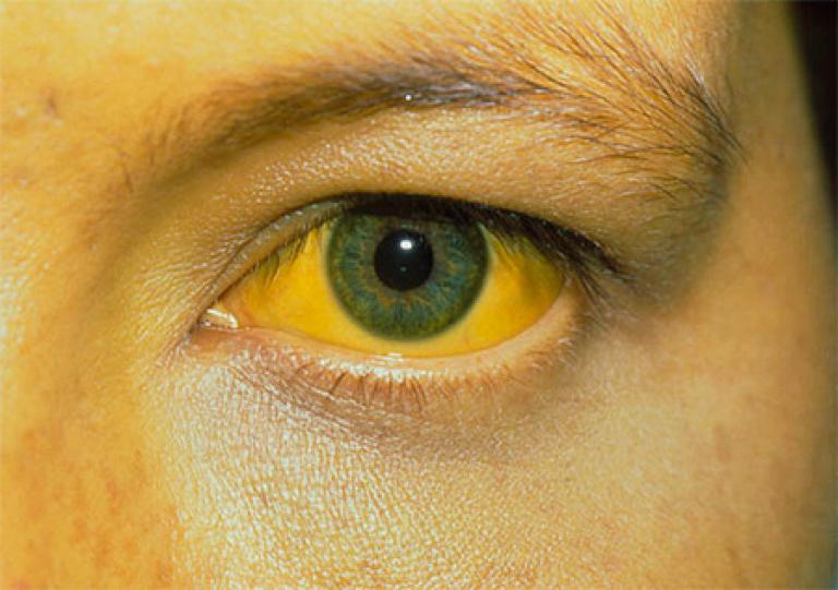 Что такое желтуха? типы и виды желтухи, симптомы и лечение | gastrogid.ru