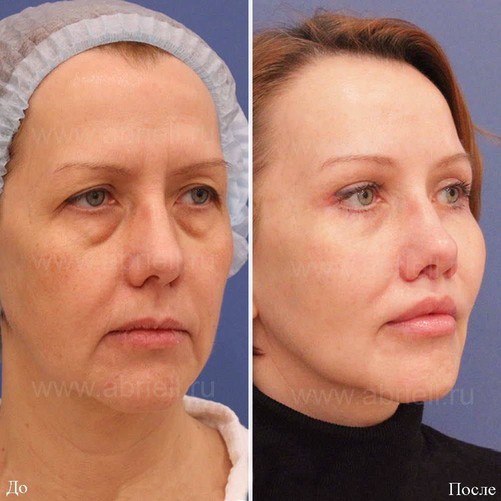 Плазмолифтинг лица и других зон: как проходит, фото до и после, отзывы, рекомендации