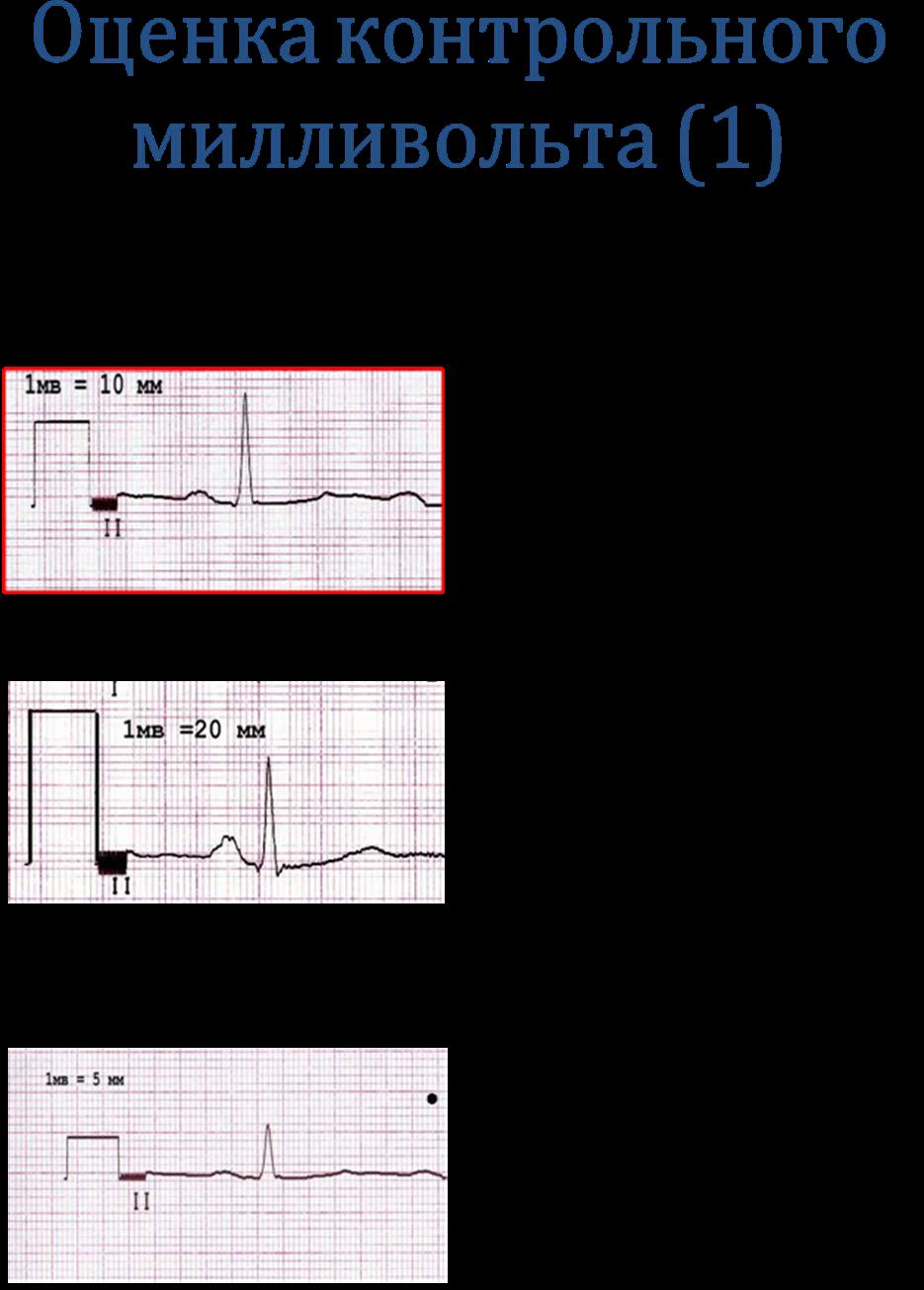 Экг (электрокардиография): что это такое, экг в норме, расшифровка обследования