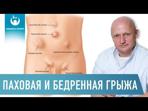 Паховая грыжа ? - симптомы и лечение. журнал медикал