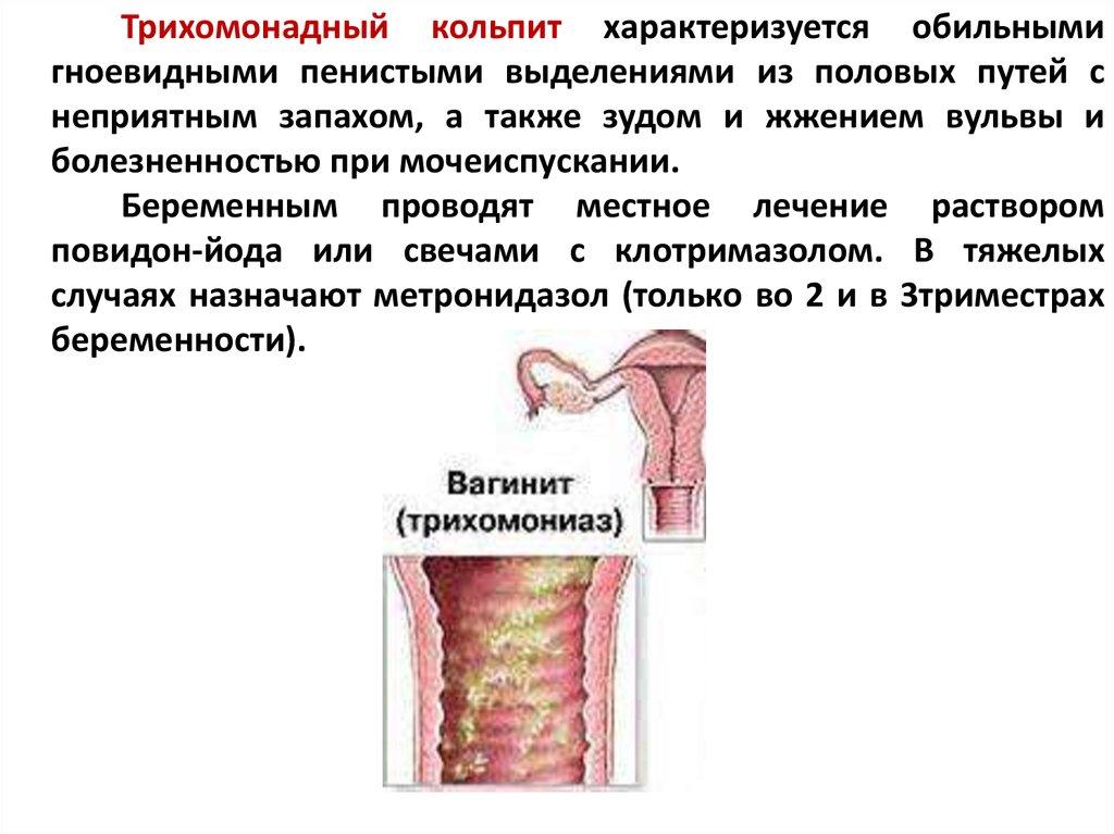Эндоцервицит - лечение, симптомы, причины, признаки эндоцервицита