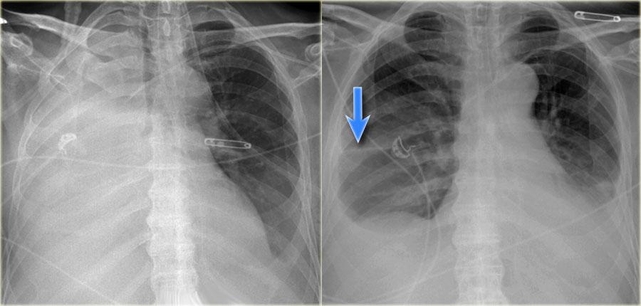 Симптомы и лечение ателектаза лёгкого