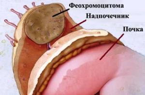 Феохромоцитома: симптомы, диагностика, анализы, лечение. к какому специалисту обратиться? :: syl.ru