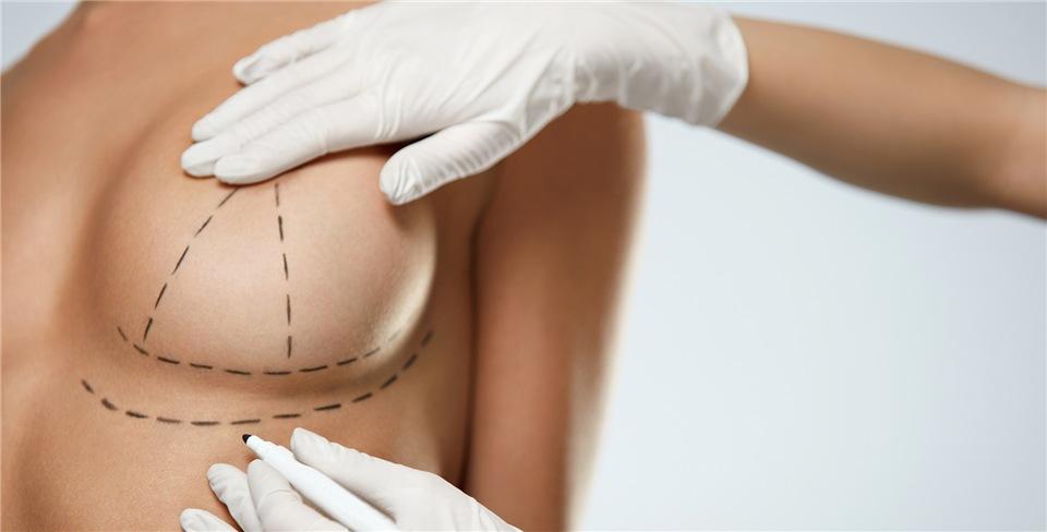 Маммопластика – что это такое? разновидности операции согласно показаниям.