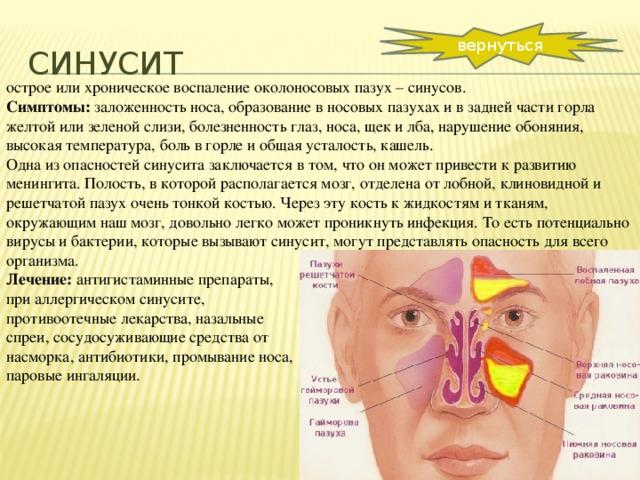 Острый и хронический синусит: общая картина заболевания