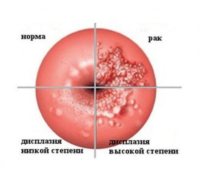 Что такое дисплазия шейки матки 1 степени? и как это лечить?