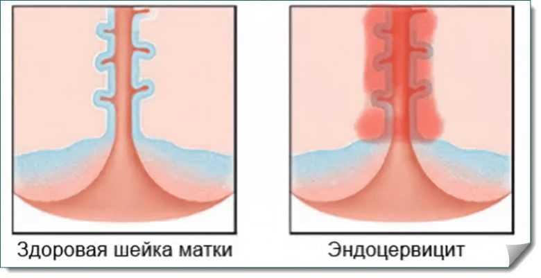 Острый и хронический эндоцервицит шейки матки - причины и диагностика, признаки и лечение