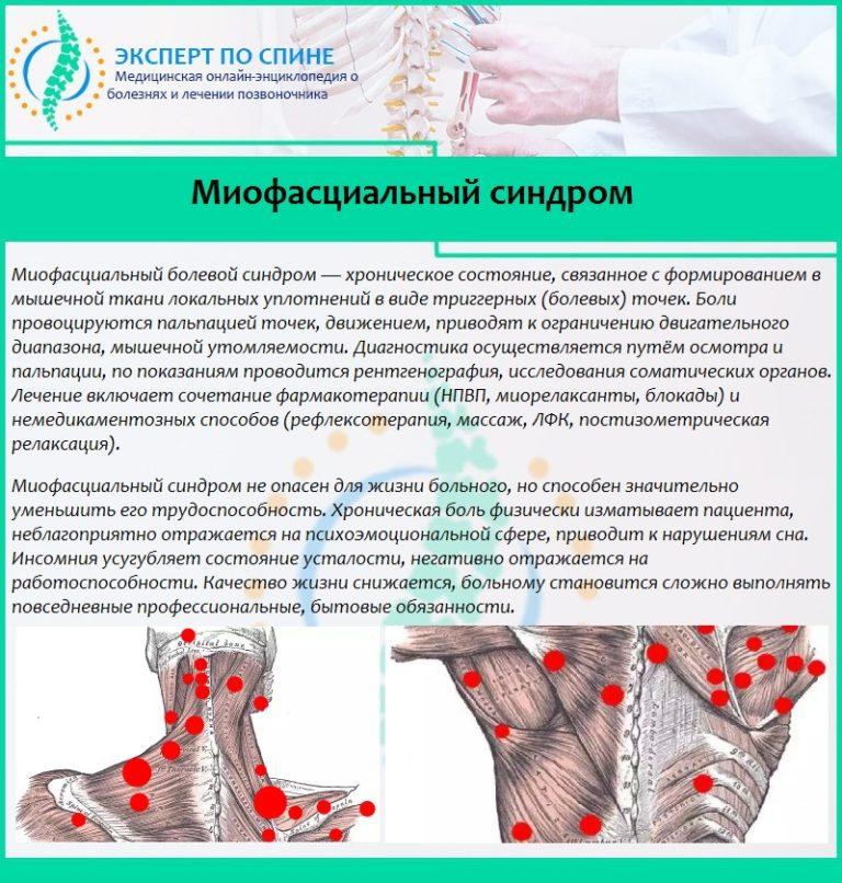 Миофасциальный болевой синдром пояснично-крестцового отдела позвоночника: что это такое, лечение, диагностика