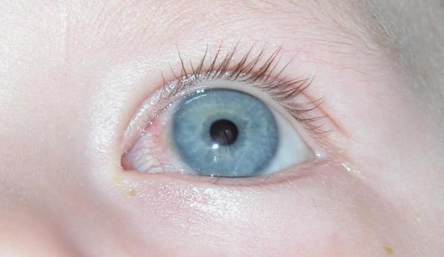 Что такое кератит глаз