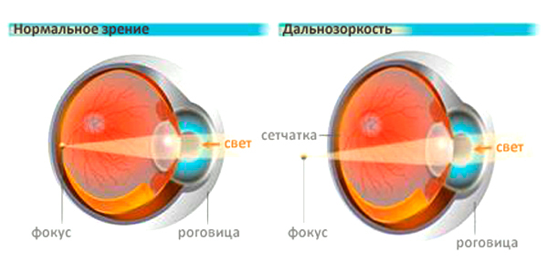 Дальнозоркость (гиперметропия): что это такое и как развивается