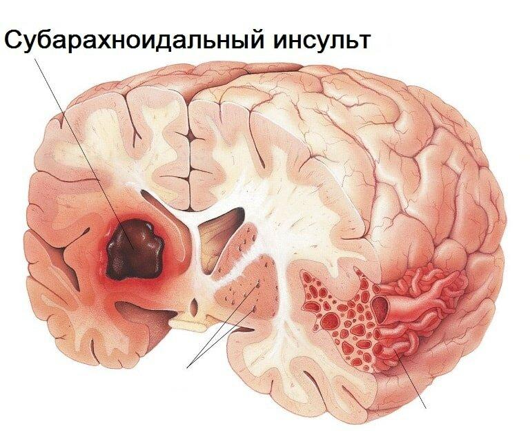 Ишемический инсульт: причины, симптомы, лечение, профилактика