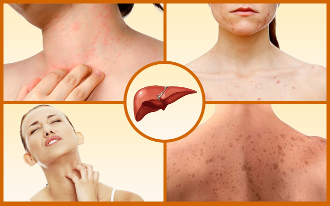 Зуд кожи на шее, спине, ногах и других областях тела: причины раздражения кожи и домашние средства лечения