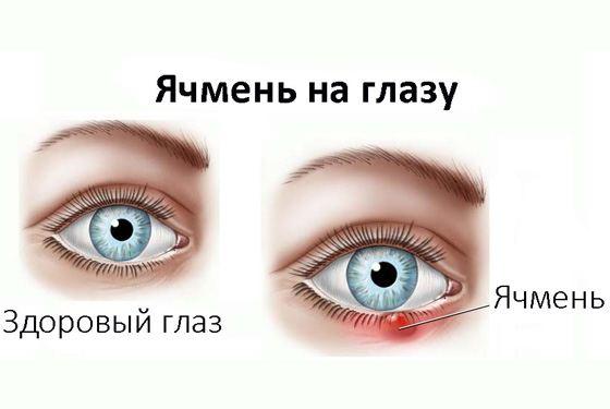 Внутренний ячмень на глазу: причины мейбомита верхнего и нижнего век, как лечить острое и хроническое восполение