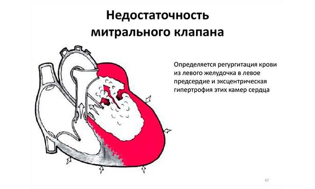 Трикуспидальная регургитация 1, 2, 3, 4 степени: что это такое, симптомы, лечение, прогноз