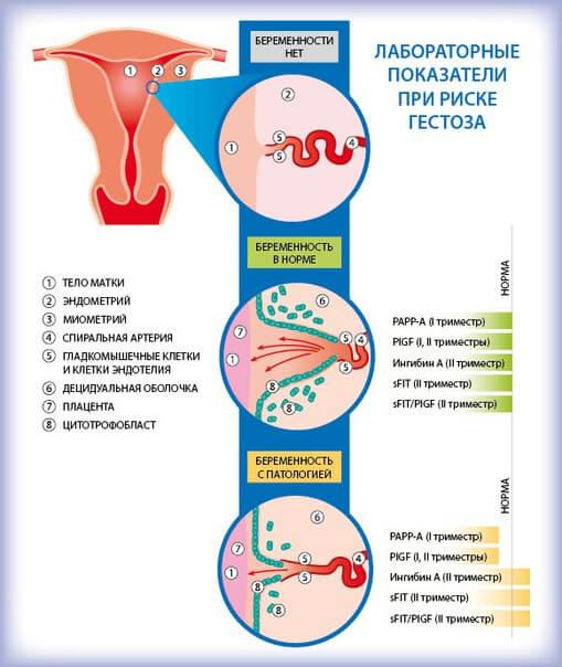 Гестоз при беременности на поздних сроках – признаки. как лечить поздний токсикоз?