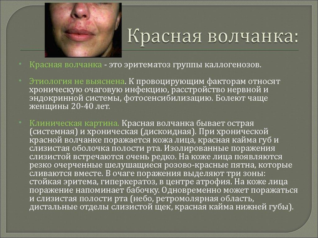 Системная красная волчанка: симптомы и виды заболевания