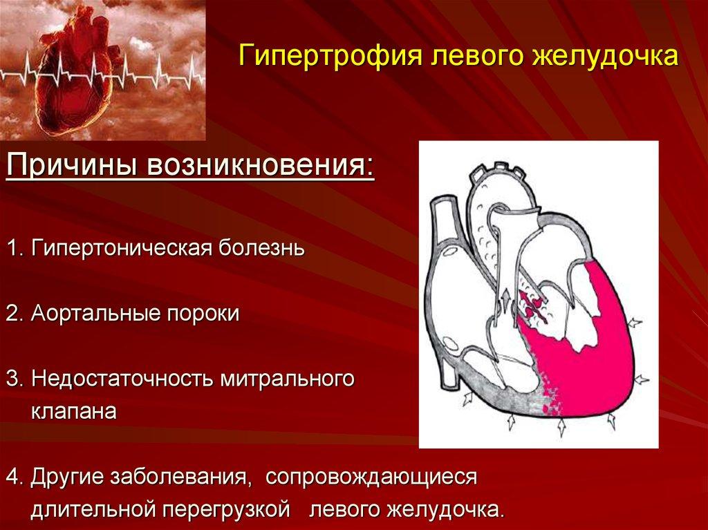 Кардиомегалия что это — сердце