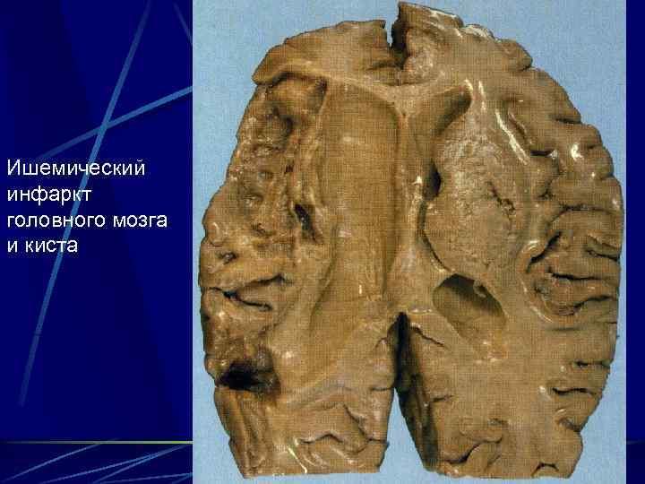 Инфаркт головного мозга и инсульт: симптомы, последствия, разница