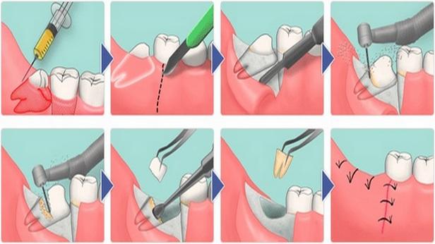 Турунды в нос: что это такое, как делать ватные носовые ходы при насморке, как вводят при гайморите