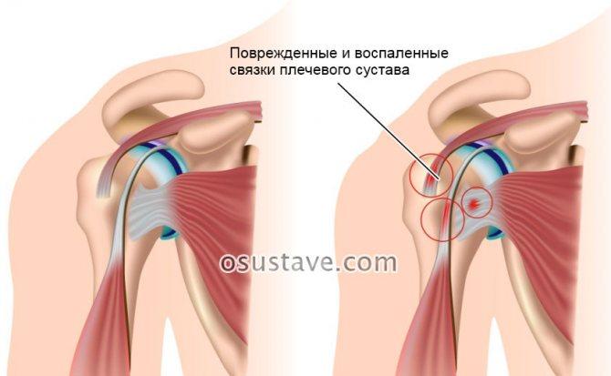 Бурсит плечевого сустава: симптомы и лечение, что это такое, причины