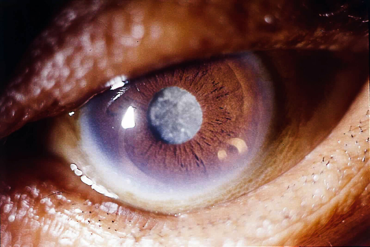 Катаракта глаза - что это такое: симптомы и лечение